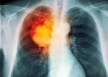Lung cancer in mining